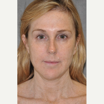 45-54 year old woman treated with Facelift before 3567137