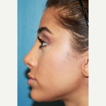 18-24 year old woman treated with Revision Rhinoplasty after 3542687