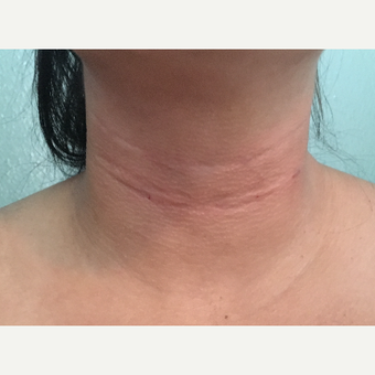 25-34 year old woman treated with Belotero