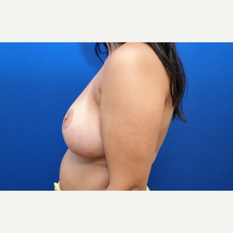 25-34 year old woman treated with Breast Reduction after 3099133