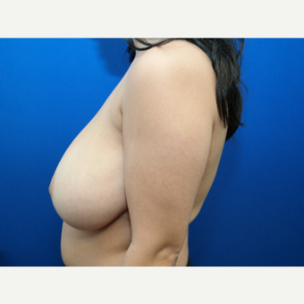 25-34 year old woman treated with Breast Reduction before 3099133