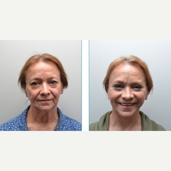 55-64 year old woman treated with Facelift after 3747635