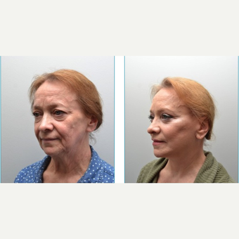 55-64 year old woman treated with Facelift before 3747635