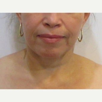48 year old woman treated with Facelift / Neck Lift after 2550376
