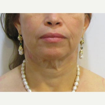 48 year old woman treated with Facelift / Neck Lift before 2550376