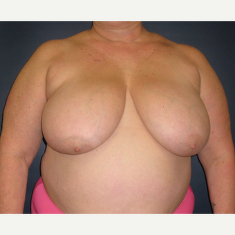 55-64 year old woman treated with Breast Reduction before 3377756