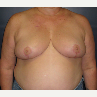 55-64 year old woman treated with Breast Reduction after 3377756
