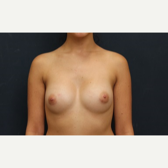 18-24 year old woman treated with Breast Augmentation after 3344908