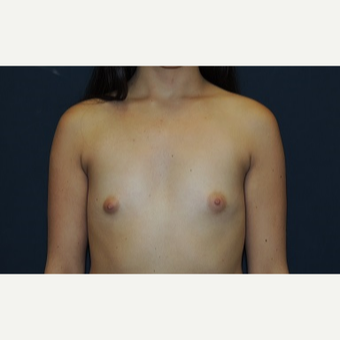 18-24 year old woman treated with Breast Augmentation before 3344908