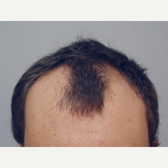 Hair Transplant before 3241304