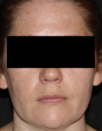 37 Year Old Female Treated for Acne and Post-Inflammatory Hyperpigmentation after 1483638