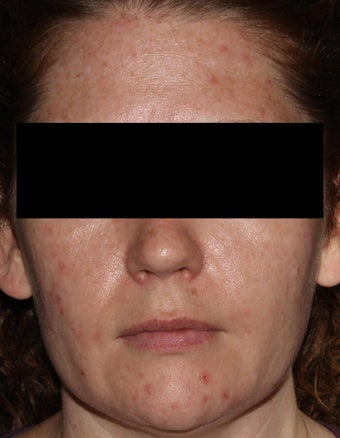 37 Year Old Female Treated for Acne and Post-Inflammatory Hyperpigmentation before 1483638
