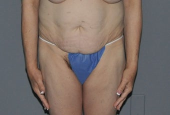 45-54 year old woman treated with Tummy Tuck before 3218221