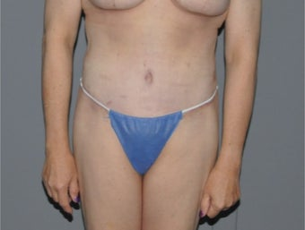 45-54 year old woman treated with Tummy Tuck after 3218221