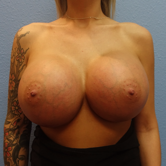 25-34 year old woman treated with Breast Implant Removal after 3254775