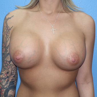 25-34 year old woman treated with Breast Implant Removal before 3254775