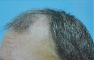 45-54 year old man treated with Hair Transplant before 3141759