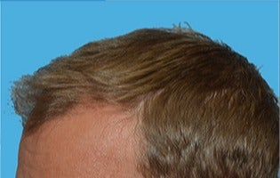 45-54 year old man treated with Hair Transplant after 3141759