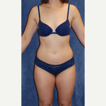 40 year old woman treated with Liposuction of waistline and inner and outer thighs before 3141687