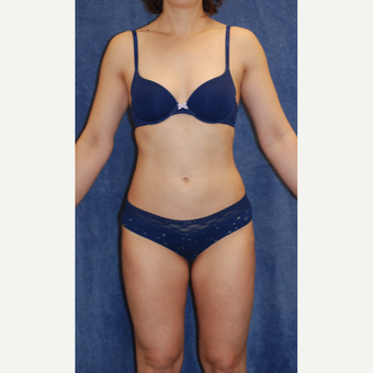 40 year old woman treated with Liposuction of waistline and inner and outer thighs after 3141687