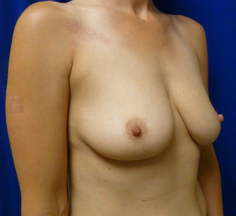 Skin Sparing Mastectomy via Inframammary Fold and Delayed Reconstruction with Expanders and Alloderm 1263141