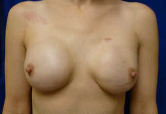 Skin Sparing Mastectomy via Inframammary Fold and Delayed Reconstruction with Expanders and Alloderm after 1263141