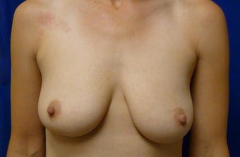 Skin Sparing Mastectomy via Inframammary Fold and Delayed Reconstruction with Expanders and Alloderm before 1263141