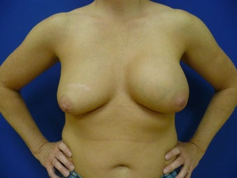 Breast Implant Removal before 941794
