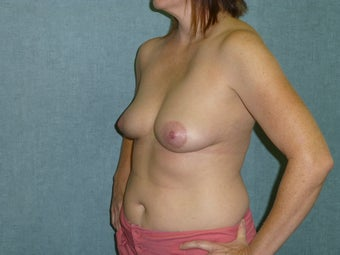 Breast Implant Removal 941794