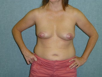 Breast Implant Removal after 941794