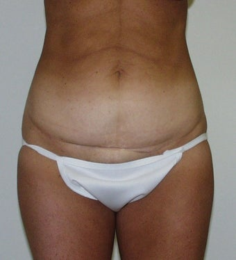 Tummy Tuck before 1434894