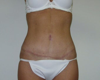 Tummy Tuck after 1434894