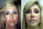 49 Year Old Before and After Fat Grafting  and Sculptra to the Cheeks before 712603