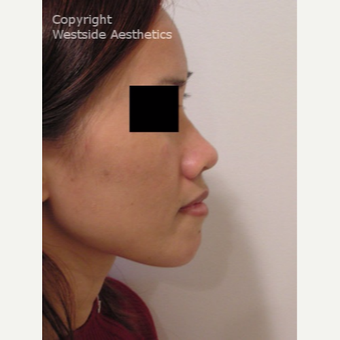 Non Surgical Nose Job Young Vietnamese Woman before 2977323