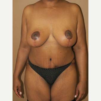 35-44 year old woman treated with Breast Lift after 2981319