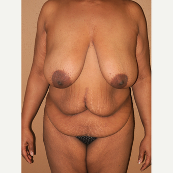35-44 year old woman treated with Breast Lift before 2981319