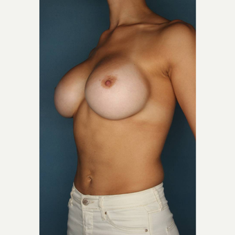 25-34 year old woman treated with Breast Augmentation after 3289179