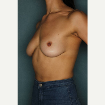 25-34 year old woman treated with Breast Augmentation before 3289179