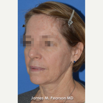 55-64 year old woman treated with Facelift before 3802282