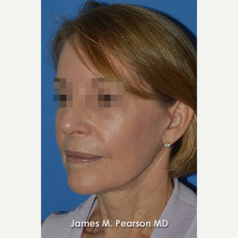 55-64 year old woman treated with Facelift after 3802282