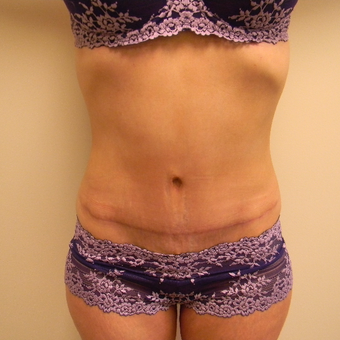 45-54 year old woman treated with Tummy Tuck after 3180589