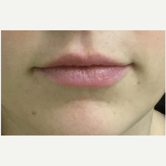 25-34 year old woman treated with Injectable Fillers after 3219568