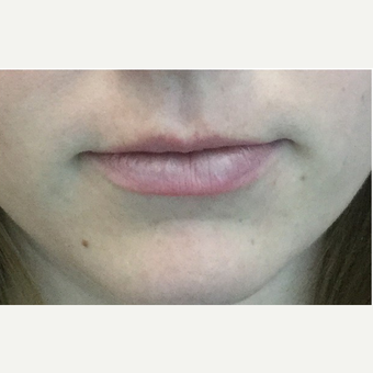 25-34 year old woman treated with Injectable Fillers before 3219568