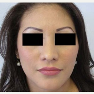 Rhinoplasty after 2993760