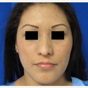Rhinoplasty before 2993760