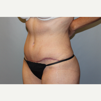 45-54 year old man treated with Tummy Tuck after 3588249