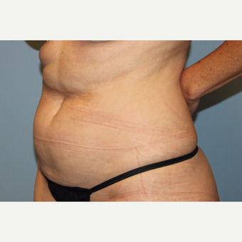 45-54 year old man treated with Tummy Tuck before 3588249