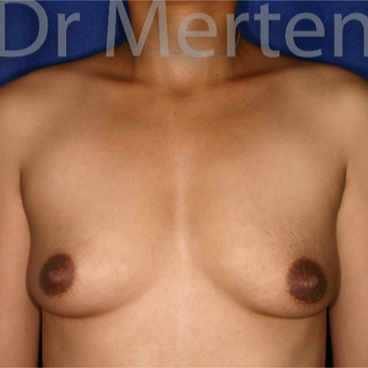 35-44 year old woman treated with Breast Augmentation before 3551188