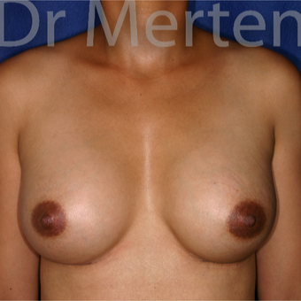 35-44 year old woman treated with Breast Augmentation after 3551188