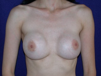 35 Year Old Female, Breast Implant Removal, No Breast Lift  before 1166111